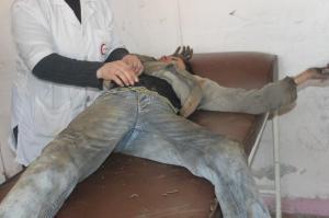 اصابة مدنيين في الشيخ مقصود